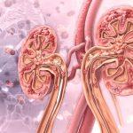 慢性腎病 治療